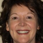 Teresa Wingar
