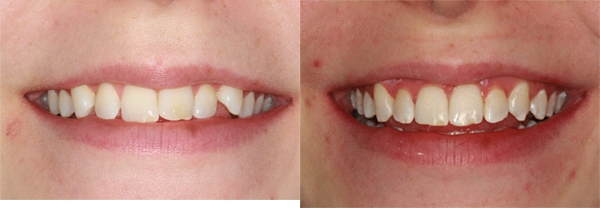 Before and after treatment with Invisalign®