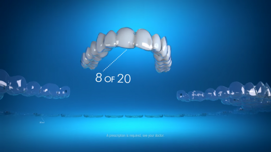 A video about Invisalign's custom aligners