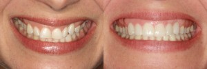 Sandra before and after her veneers, showing the new shape and natural look of her veneers.