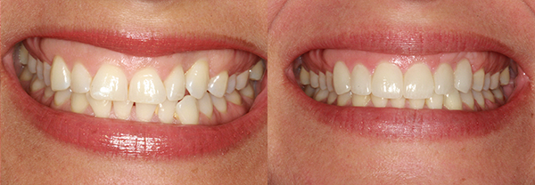 Before and after treatment with veneers