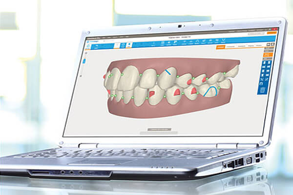 3D image of what your new smile will look like before treatment.