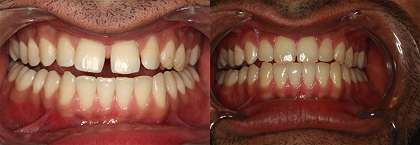 Before and after of Invisalign treatment for gaps between front teeth.