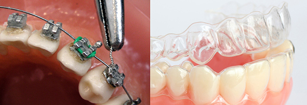 Metal braces compared to Invisalign trays