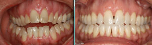 Pictures of Angie's teeth before and after her invisalign treatment