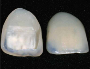A picture showing two bonded teeth