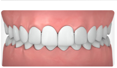 A picture showing a set of teeth with an overbite.