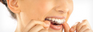 A picture showing a women putting in her Invisalign braces