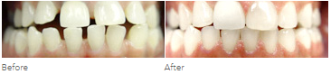 Before and after pictures of some who used Invisalign to treat their gapped teeth